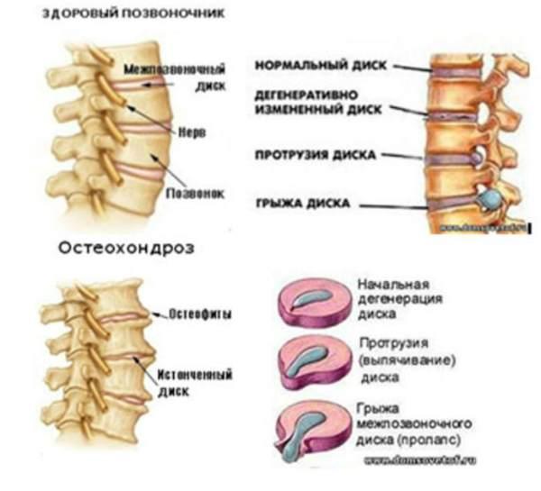 остеохондроз позвоночника лечение питание