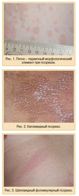 Псориаз И Артрит Симптомы