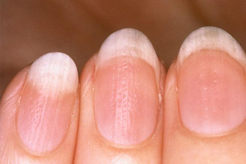 Какие заболевания ногтей фото
