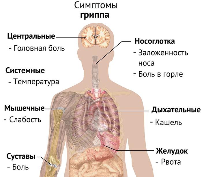 Какие симптомы при свином гриппе
