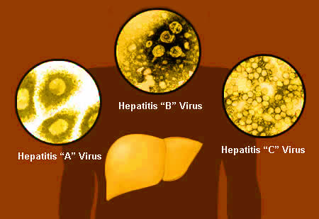 hepatitis viruse
